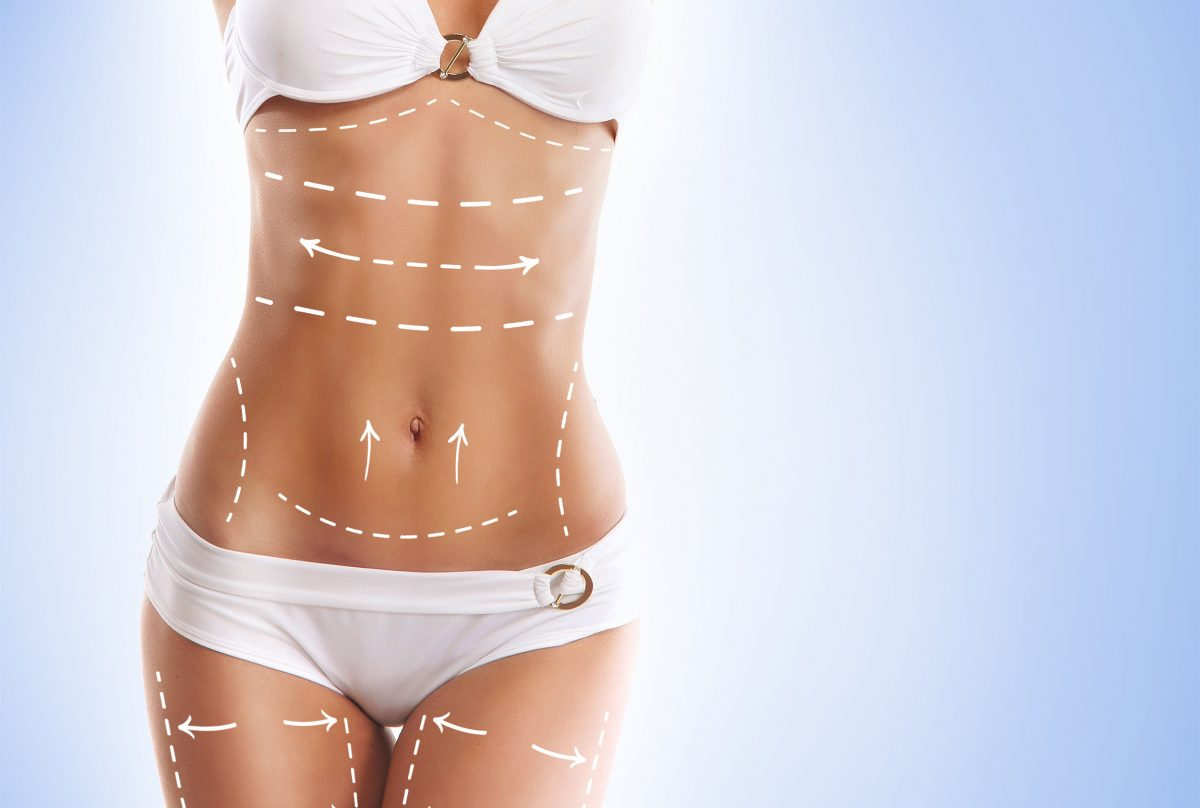 difference-between-Liposuction-and-Lap-Band-1200x808.jpg