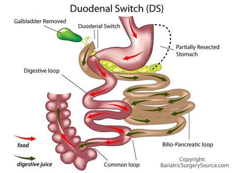duodenal_switch